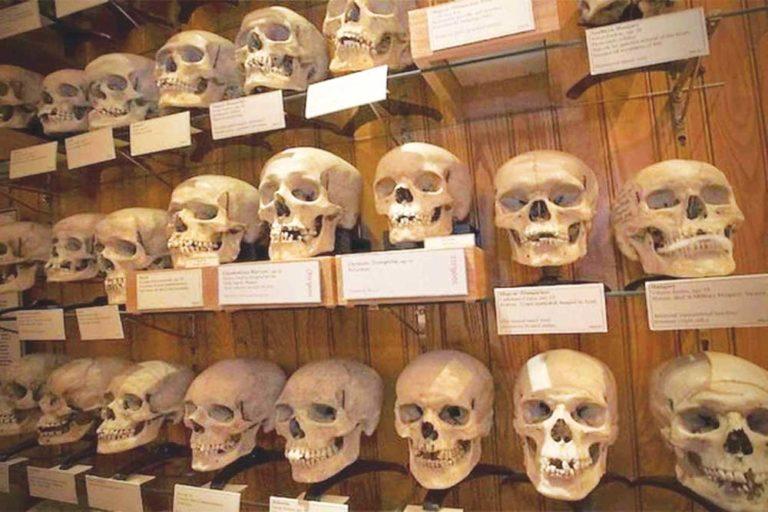 Crânes algériens du musée de l'Homme